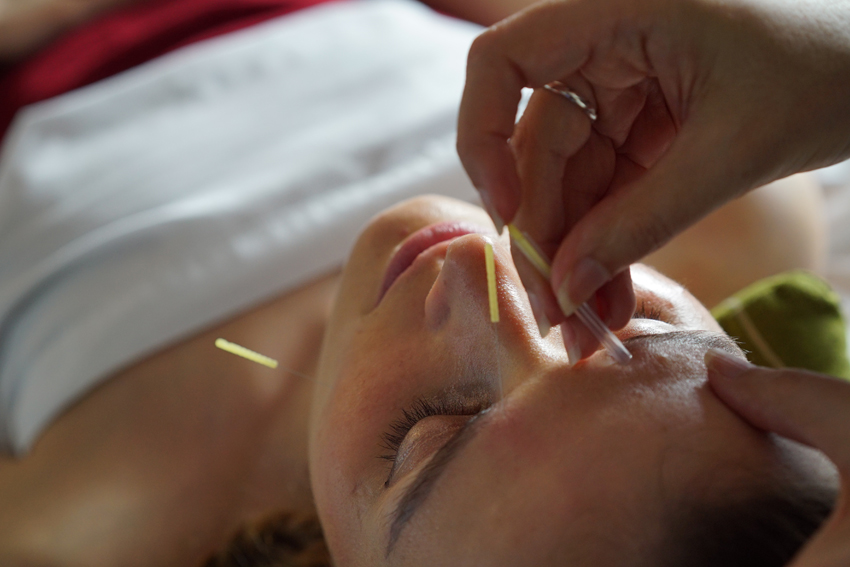 cosmetic-acupuncture-service-vancouver